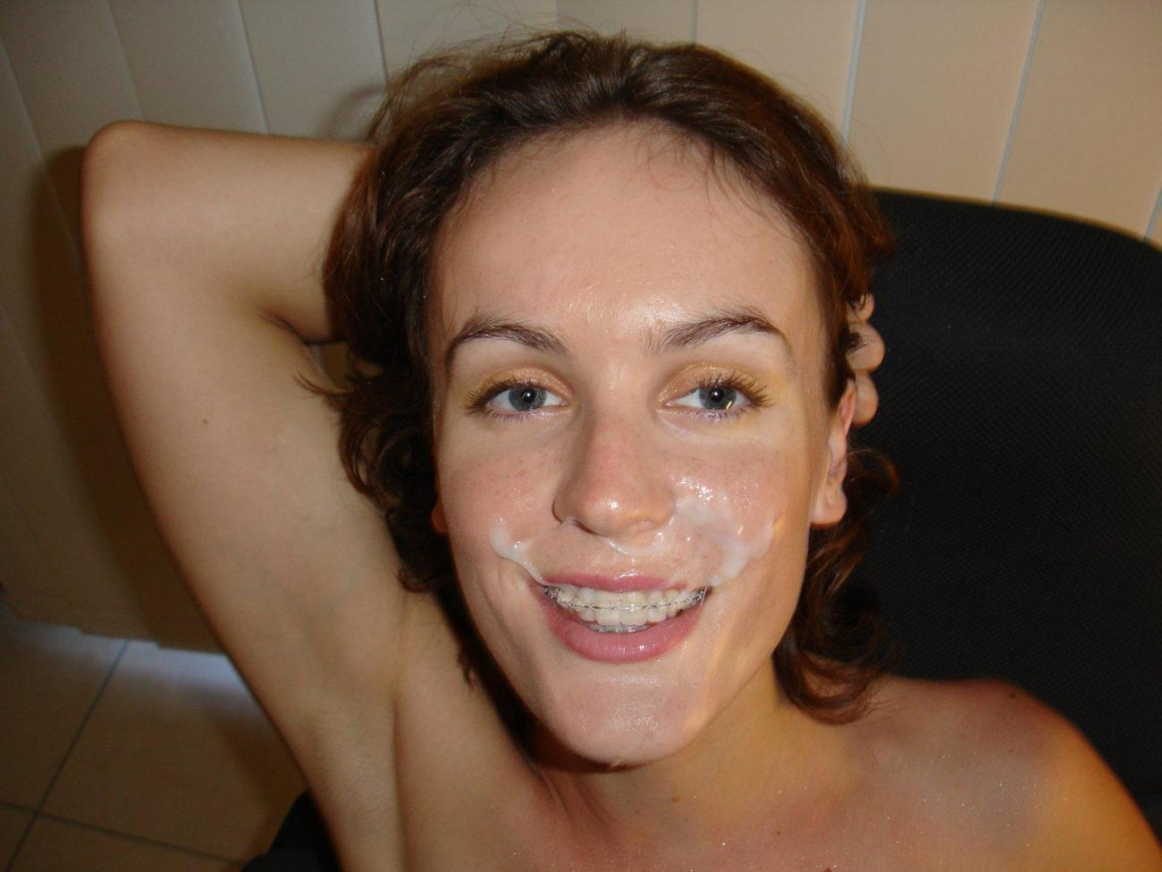 Nude Girls With Braces Cum Facial